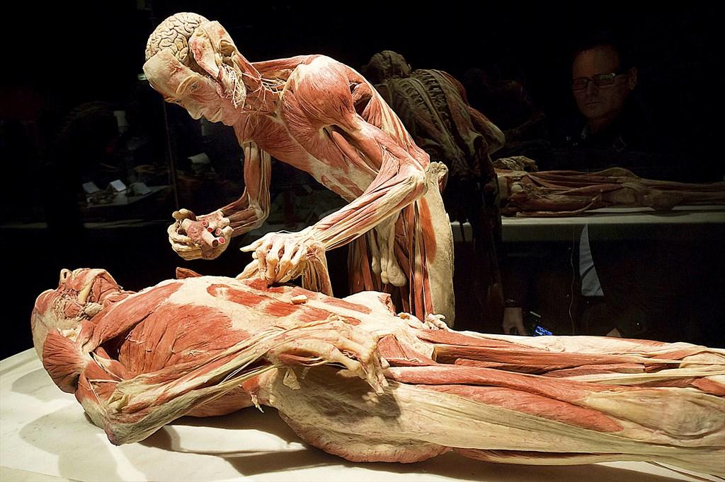 Anatominen ruumiinavaus